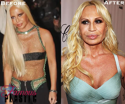 donatella versace breast implants plastic surgery