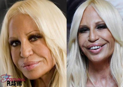 donatella versace after lip plastic surgery