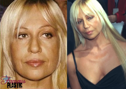 donatella before plastic