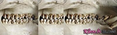 Гель вместо стоматолога